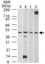 PAB0359 - Aurora kinase A