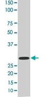 PAB0394 - 14-3-3 protein epsilon