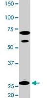 PAB0395 - 14-3-3 protein epsilon