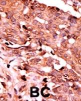 PAB0423 - Caspase-6