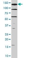 PAB0535 - HGF receptor