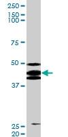 PAB0561 - TP53 / p53