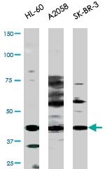 PAB0562 - TP53 / p53