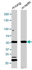 PAB0568 - TP53 / p53