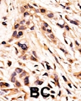 PAB0596 - Retinoblastoma-associated protein / RB1