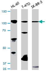 PAB0597 - Retinoblastoma-associated protein / RB1