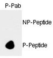 PAB0599 - Retinoblastoma-associated protein / RB1