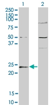PAB0640 - Guanylate kinase / GUK1