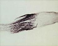 PAB0706 - Neurotrophin 3 / NTF3