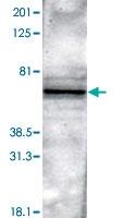 PAB0720 - PTH Receptor 2