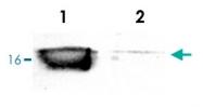 PAB0725 - Superoxide Dismutase 1 / SOD1