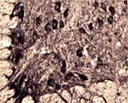 PAB0734 - Neurotensin receptor 3