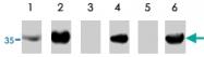 PAB10164 - TP53I3