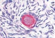 PAB10200 - Delta-like protein 4 / DLL4