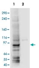 PAB10221 - AP1 complex subunit gamma-1 / AP1G1