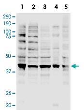 PAB10232 - RNF2