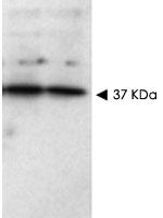 PAB10235 - SFRP1