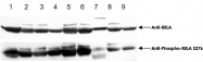 PAB10336 - RELA / NF-kB p65