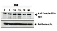 PAB10337 - RELA / NF-kB p65