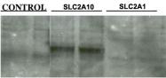 PAB1080 - GLUT10 / SLC2A10