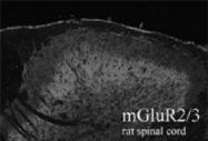 PAB1097 - mGluR2 / GRM2