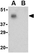 PAB11249 - CD279 / PD1