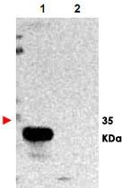 PAB11278 - TMBIM1 / RECS1