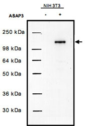 PAB11289 - DDEFL1