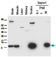 PAB11324 - Selenoprotein W (SELW)