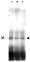 PAB11356 - MER2