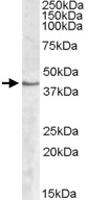 PAB11412 - Sphingosine kinase 1 (SPHK1)