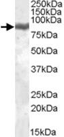 PAB11431 - Lactotransferrin