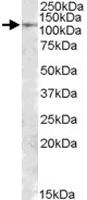 PAB11432 - MTHFD1