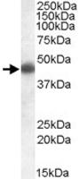 PAB11435 - Apolipoprotein L1 (Apo L1)