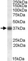 PAB11437 - Apolipoprotein J / Apo J