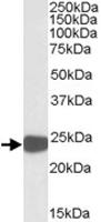 PAB11441 - Peroxiredoxin-1 / PRDX1