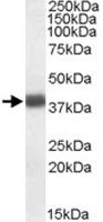 PAB11447 - Apolipoprotein L2 / APOL2