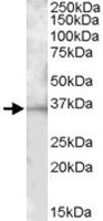 PAB11450 - CD272 / BTLA