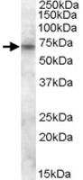 PAB11481 - ABCD3 / PMP70
