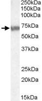 PAB11482 - ABCD4 / PXMP1L