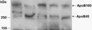 PAB11488 - Apolipoprotein B / Apo B