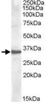 PAB11492 - Apolipoprotein F / Apo F