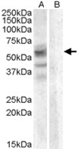 PAB11496 - Arylsulfatase D
