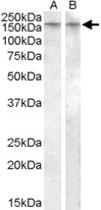 PAB11503 - Vasopressin V1b receptor (V1bR)