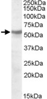 PAB11510 - Acetylcholine receptor beta subunit