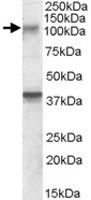 PAB11539 - GRIK3 / GLUR7