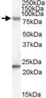 PAB11548 - DHX58