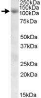 PAB11585 - Sorting nexin-19 (SNX19)