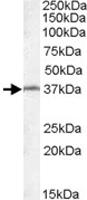 PAB11601 - RSPH1 / TSGA2