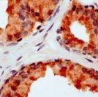 PAB11648 - CD178 / Fas Ligand